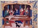 La dissection, d'après le Livre des propriétés des choses. France, XVe siècle. Paris, BnF